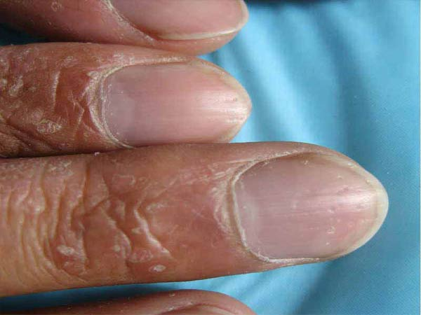 如何诊断手部牛皮癣