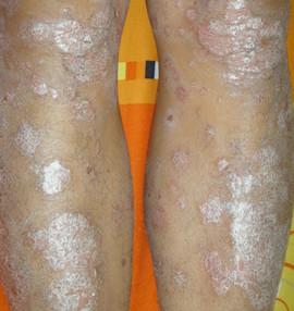 腿部牛皮癣的症状是什么