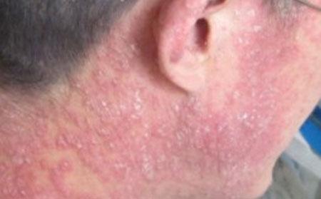 轻微牛皮癣患者皮肤护理